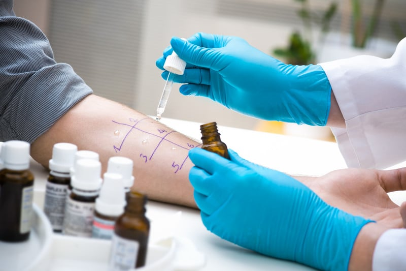Guidelines for Reporting Allergy Testing and Immunotherapy Services