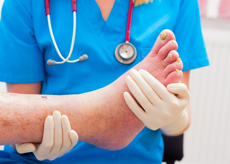 Diagnosing and Documenting Charcot's Foot