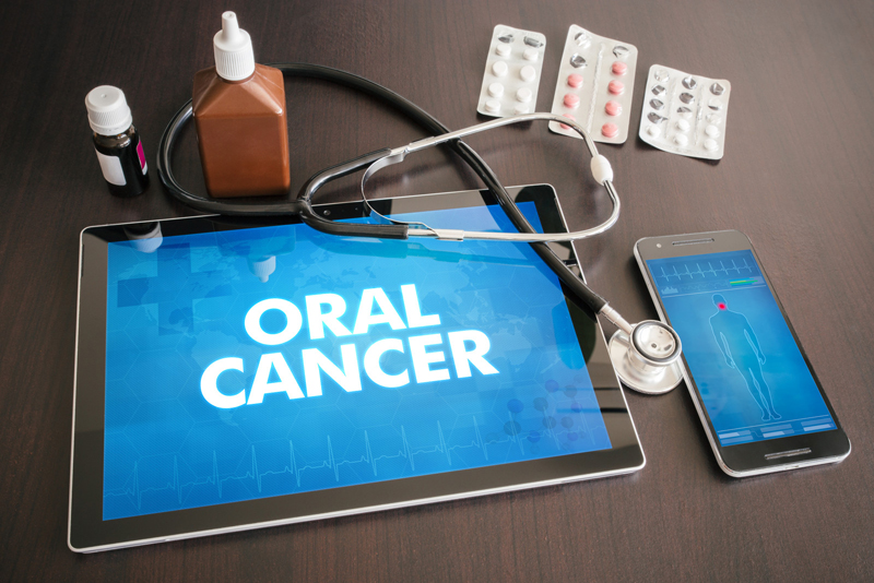 Frequently Asked Questions and Answers about Oral Cancer