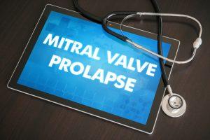Coding Mitral Valve Prolapse